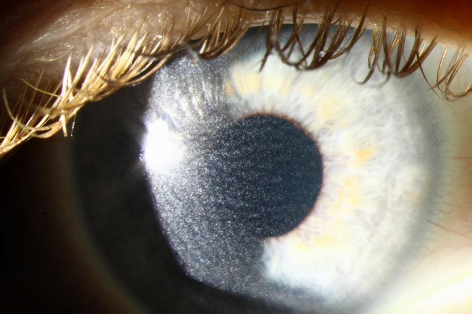 My Laser Eye Surgery, Part III: PRK Post-Op Recovery